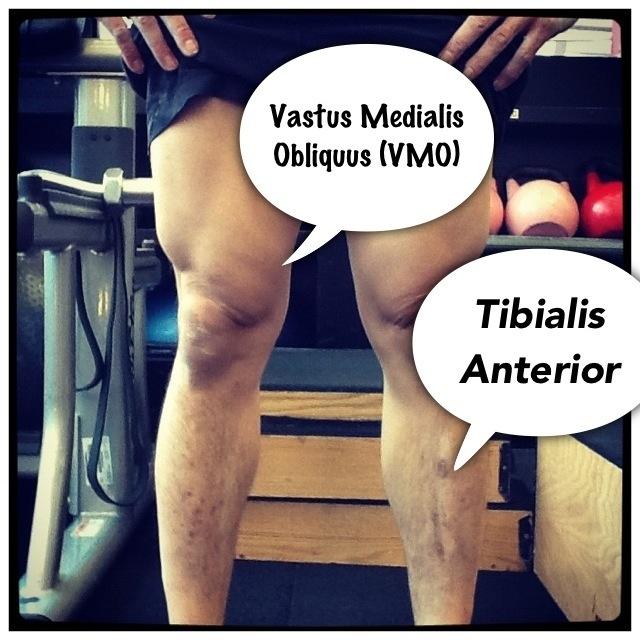 Vastus Medialis Oblique Exercises